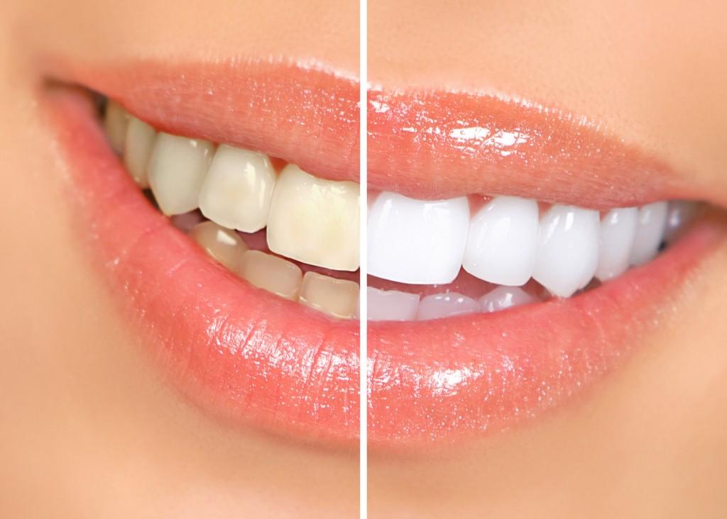 A hosszan tartó fehér fogak titka